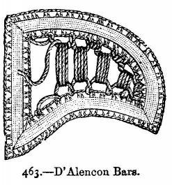 D'Alençon Bars.